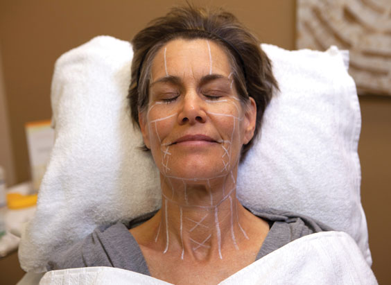 Strahlend frischer Teint mit Ultherapy: Vorbereitung der Behandlung.