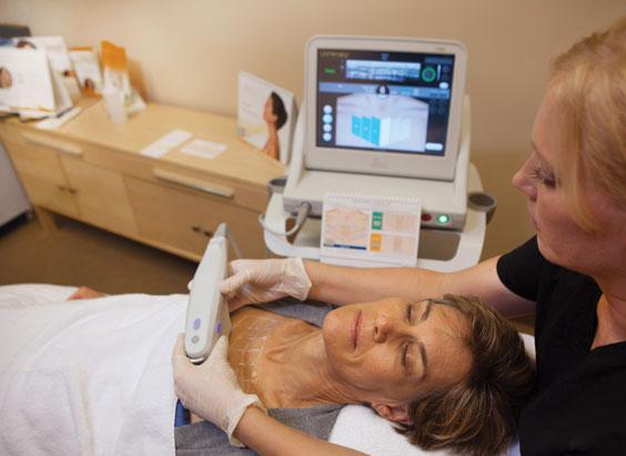 Behandlung mit Ultherapy: Halsstraffung mit Ultraschall