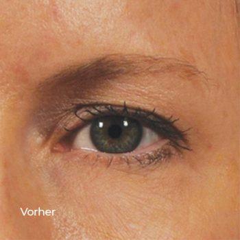 Beispiel für Ergebnisse nach Behandlung des augmentalen Bereichs. Unretouchierte Fotos. Individuelle Ergebnisse können variieren.